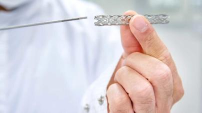 Estente: saiba como este pequeno dispositivo pode ajudar a vida de muitas pessoas