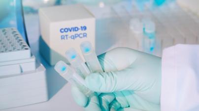 Novos centros de teste para Covid 19 em Orange County