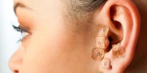 Vocês já ouviram falar sobre Auriculoterapia presencial e à distância nesse tempo de COVID19?